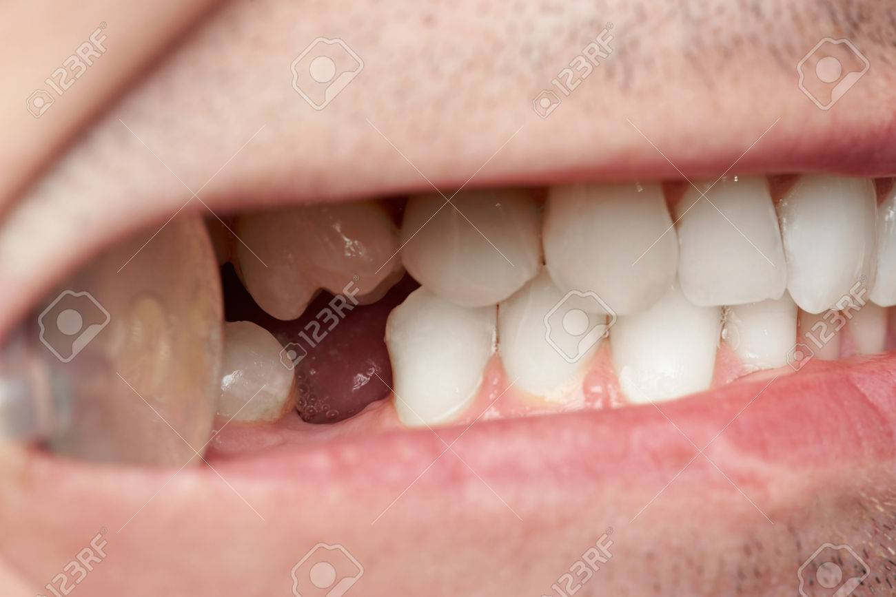 Teeth with gap of missing tooth close-up. Doctor man checking teeth - 80874046