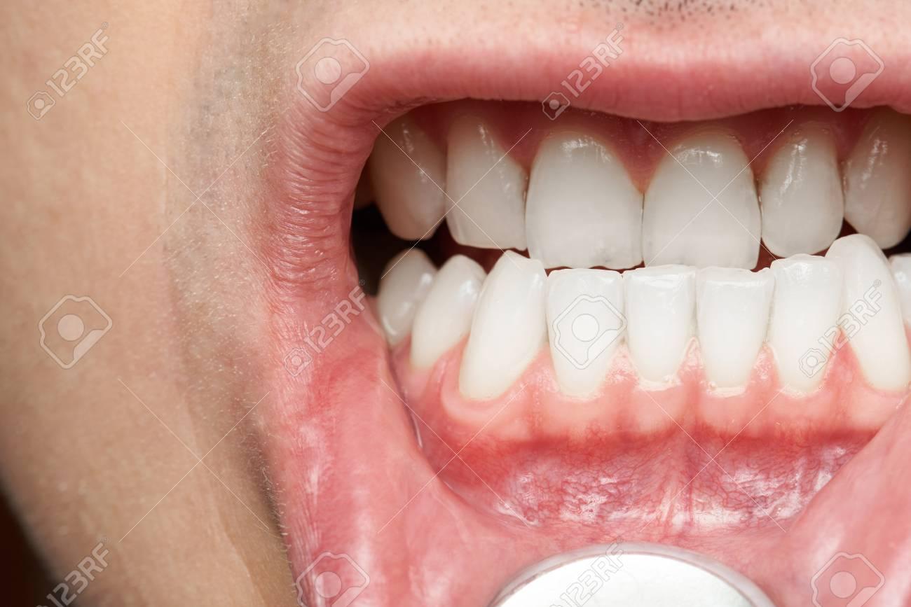 La Bouche De Lhomme Avec Un Gros Grosse Dent Médecin Dentiste