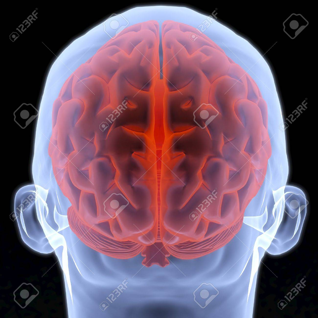 Scanning of a human brain by X-rays. 3d image. Stock Photo - 7969116