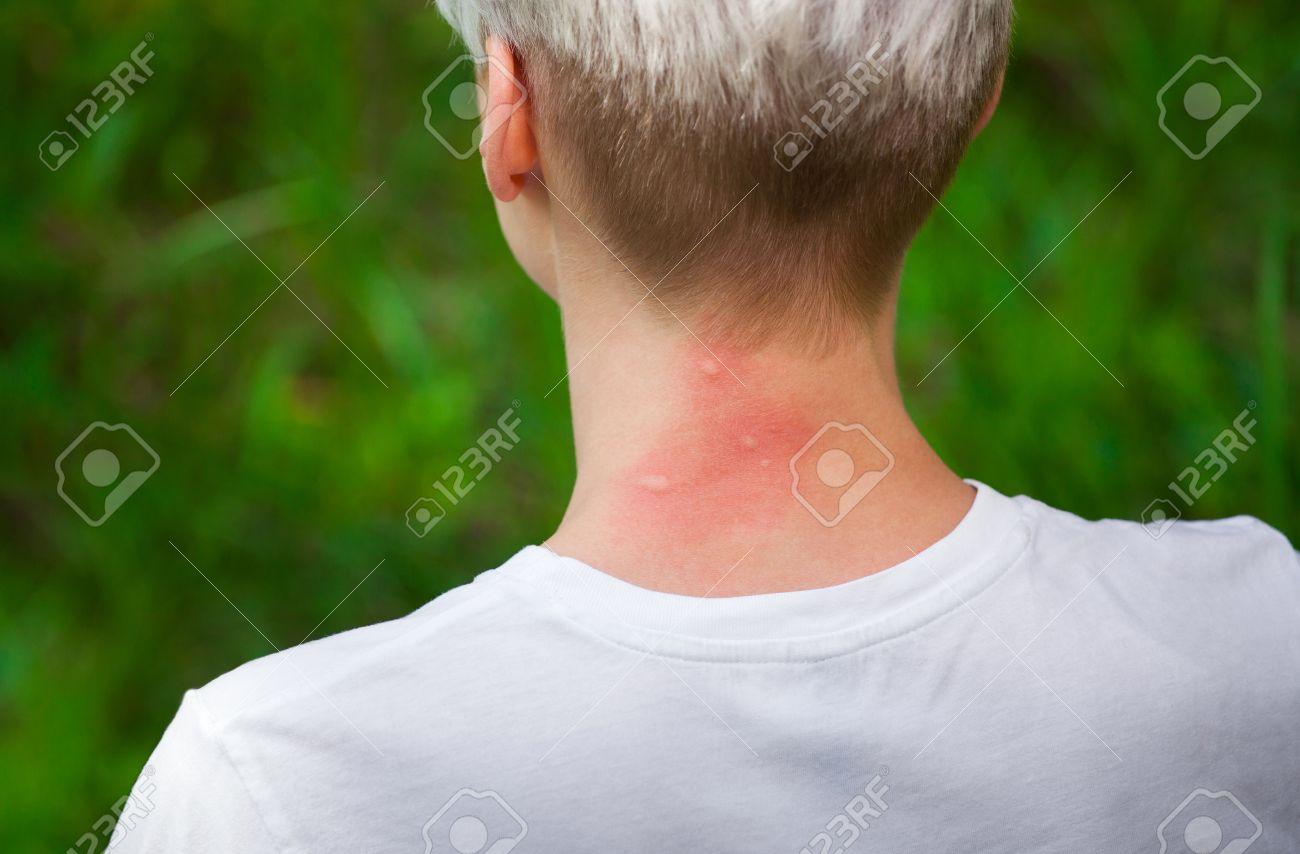peau du cou rouge