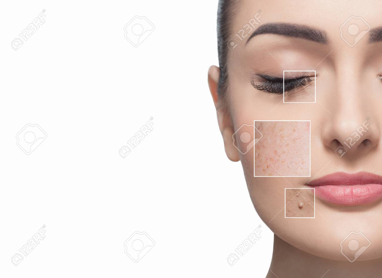 Portrait of a beautiful woman on a white background, on the face are visible areas of problem skin - wrinkles and freckles. Cosmetology concept. - 120388510