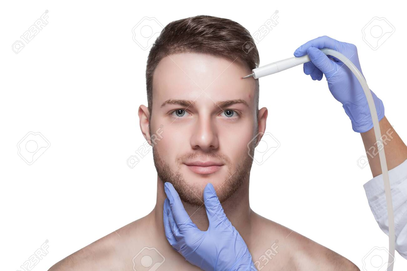 Men's cosmetology. Beautician makes a man a procedure to remove acne from his face. - 131698821