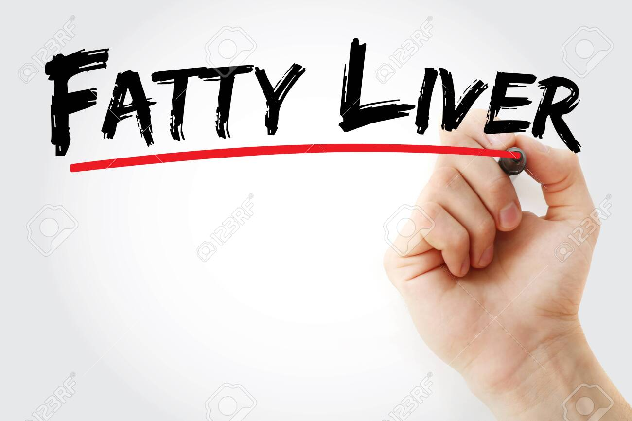 Fatty liver text with marker, concept background - 138550070