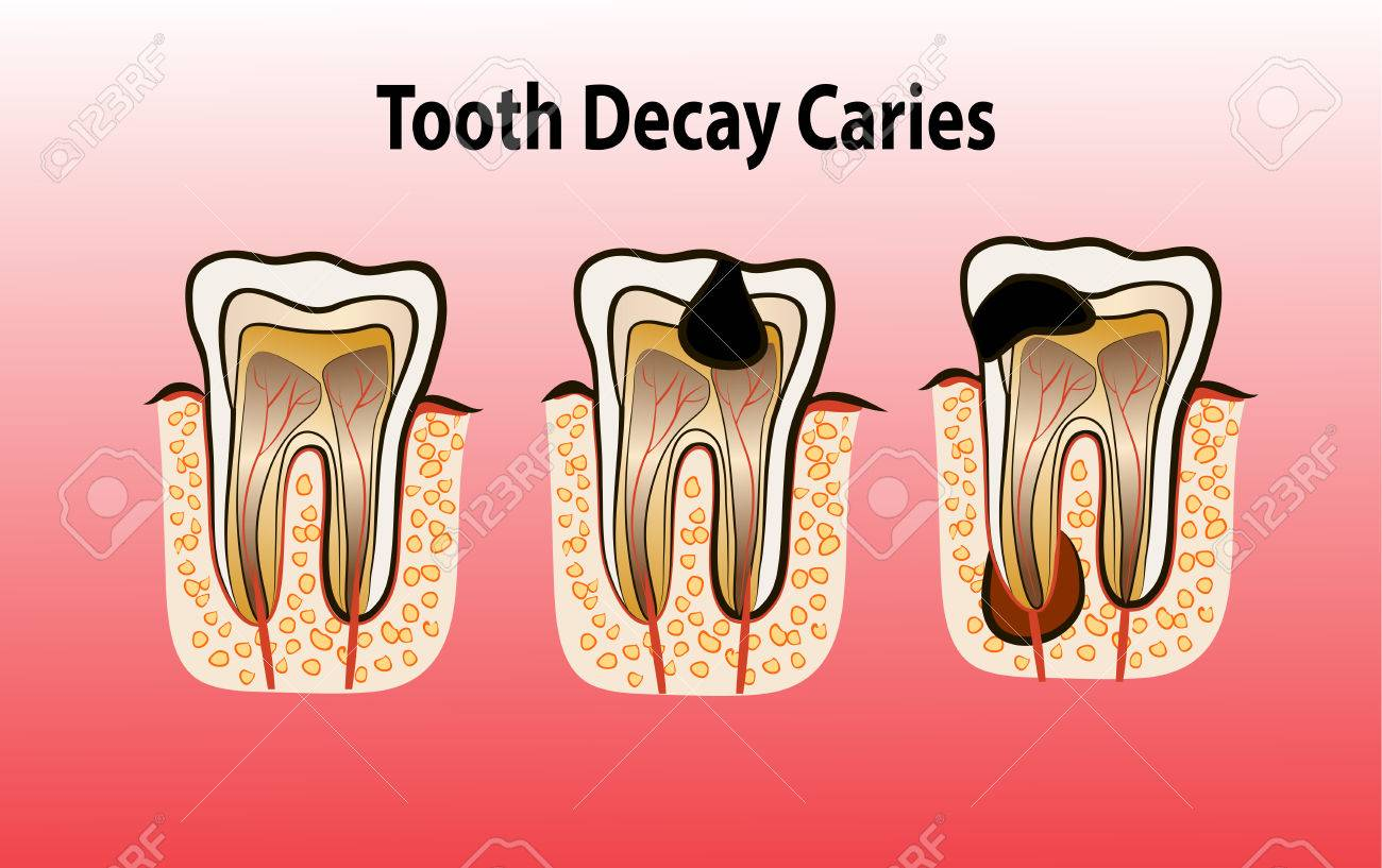 Vector illustration of tooth decay  Four stages of dental caries