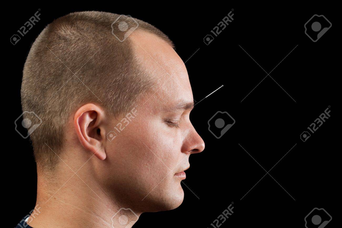 Young man receiving acupuncture Stock Photo - 10470733