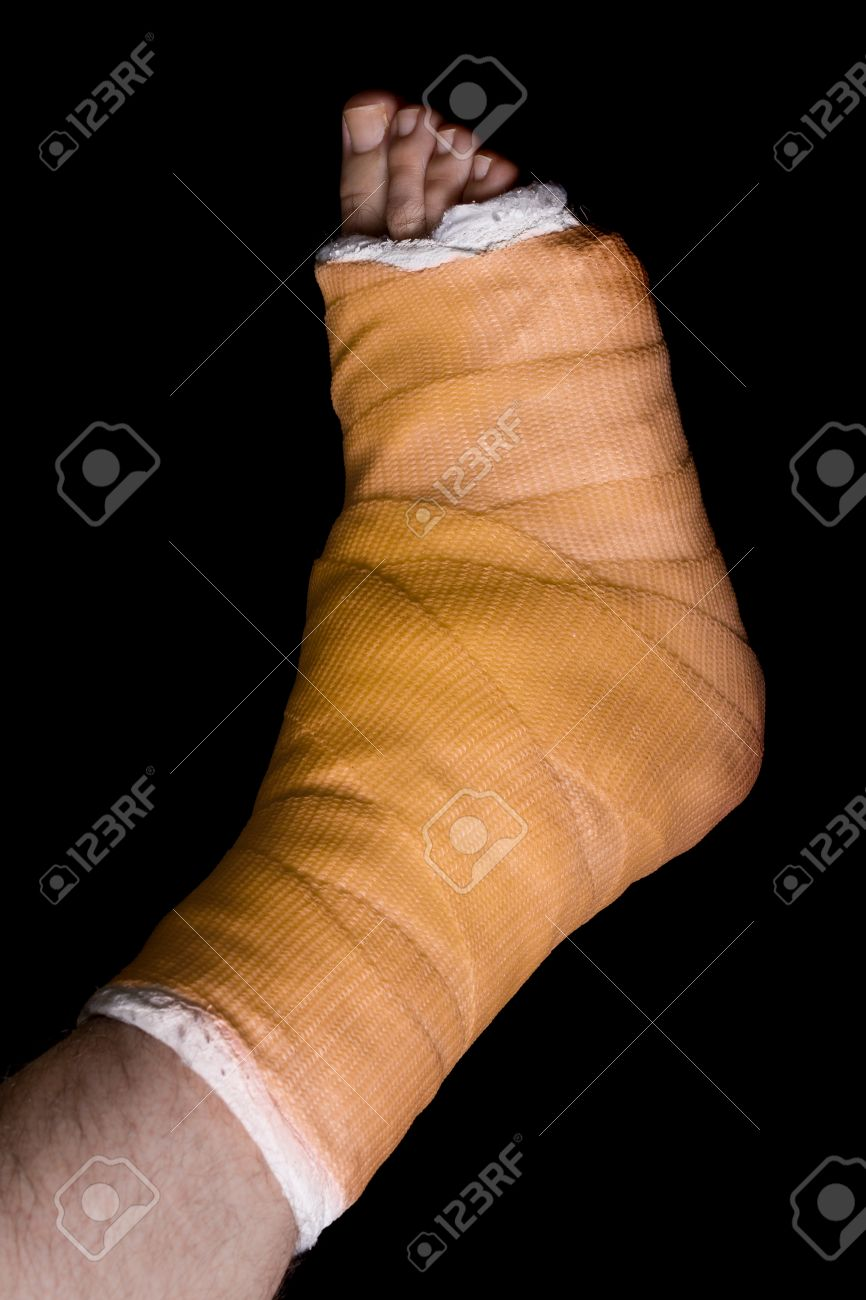 Orange plaster and fiberglass leg cast worn by a young man(isolated