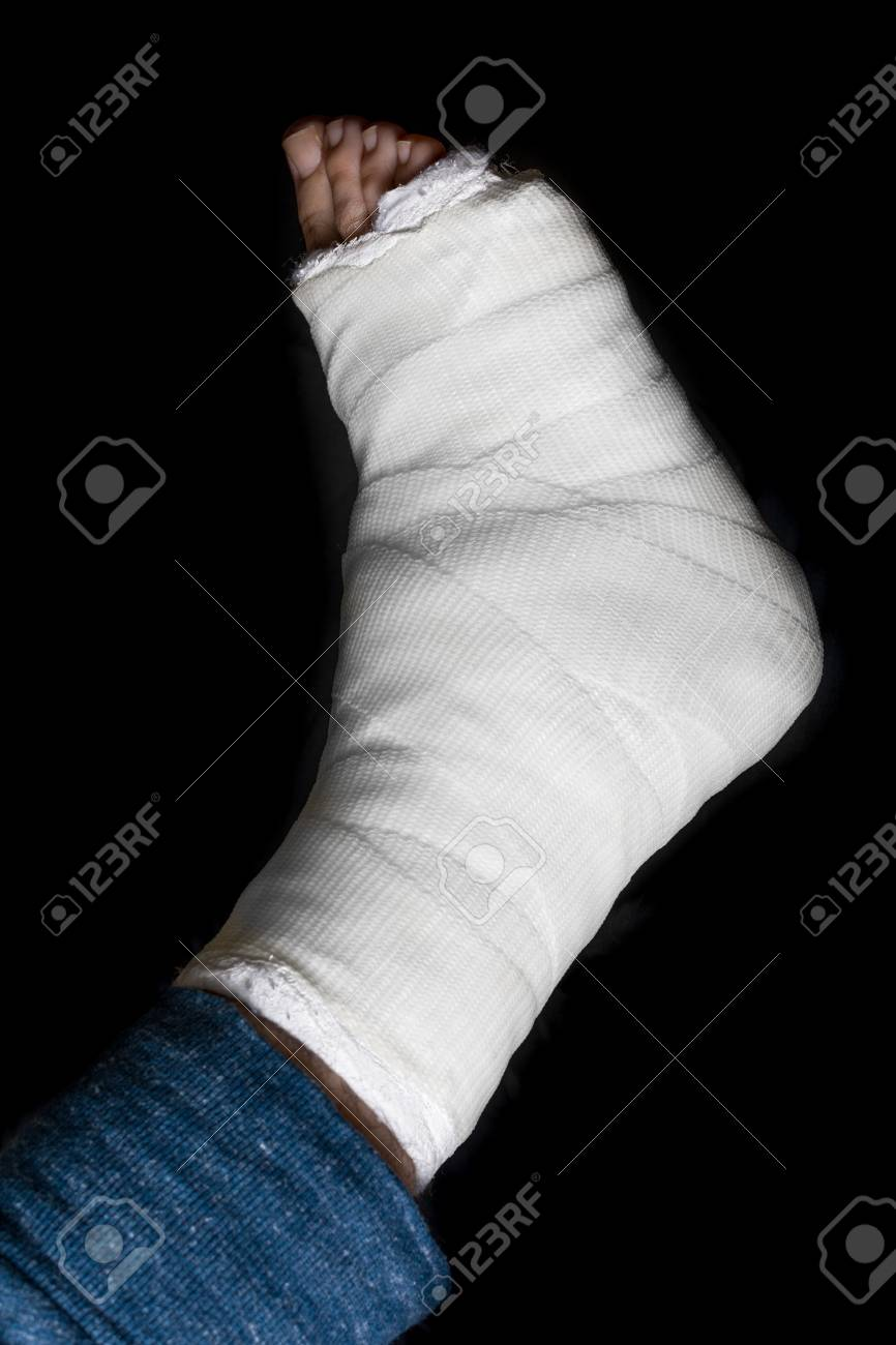 White plaster and fiberglass leg cast worn by a young man(isolated