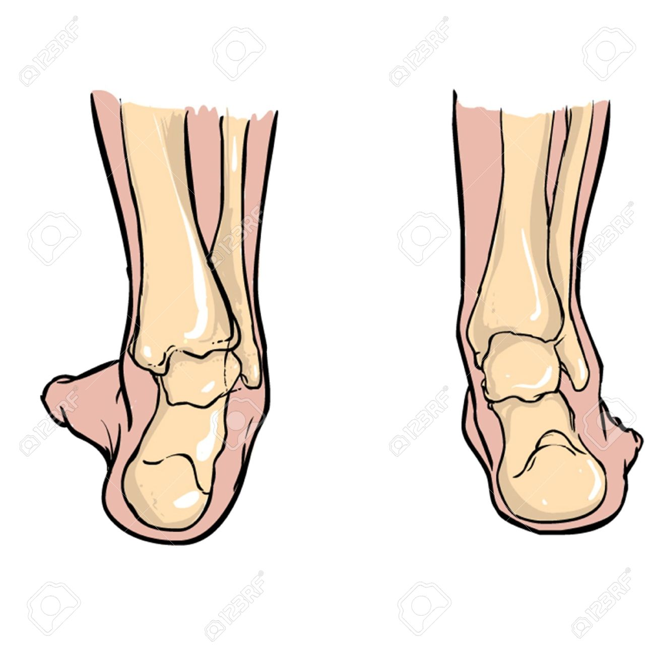 Supination Of Feet AndPronation Of Feet Royalty Free Cliparts ...