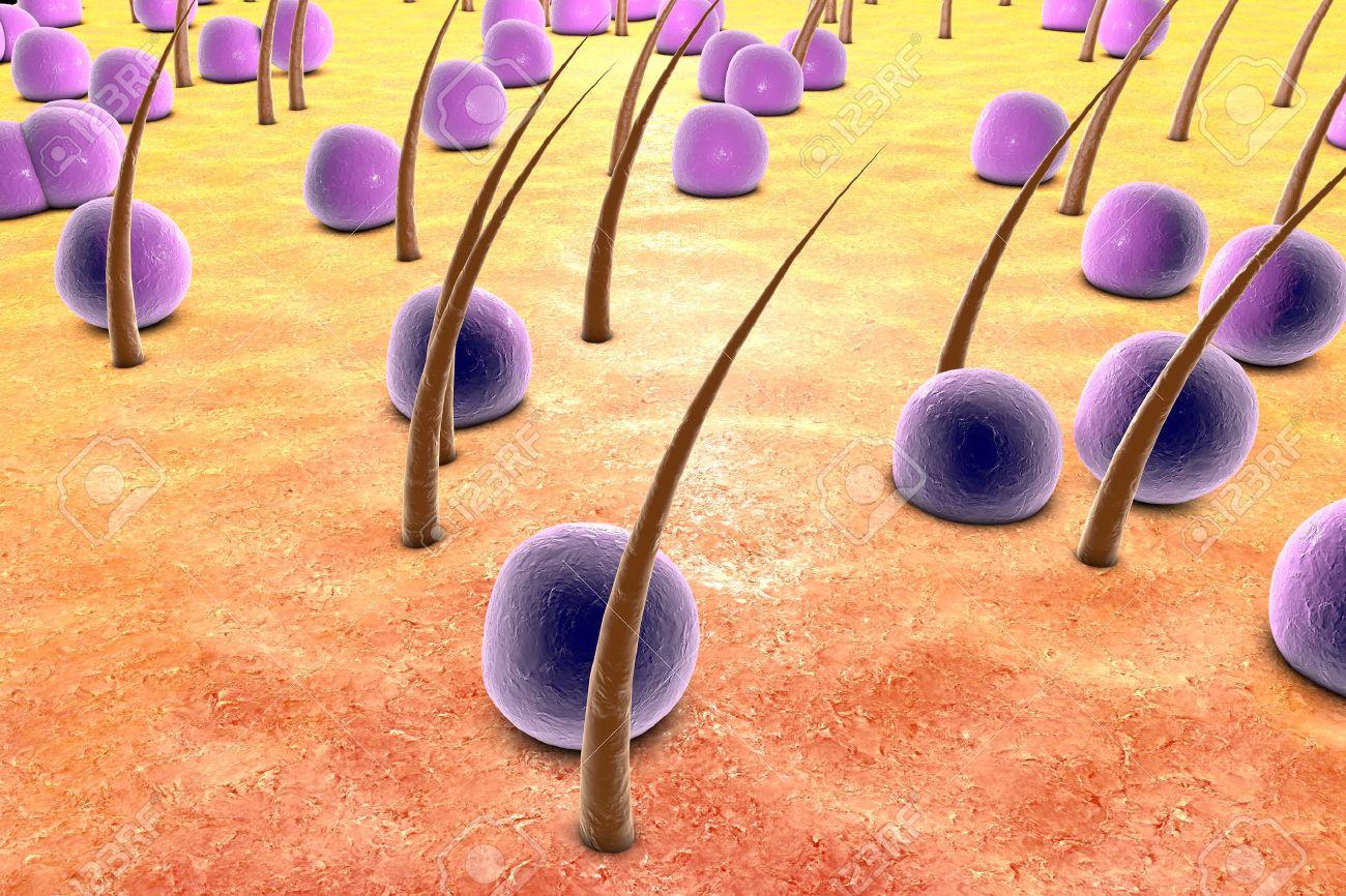 estafilococos o estreptococos