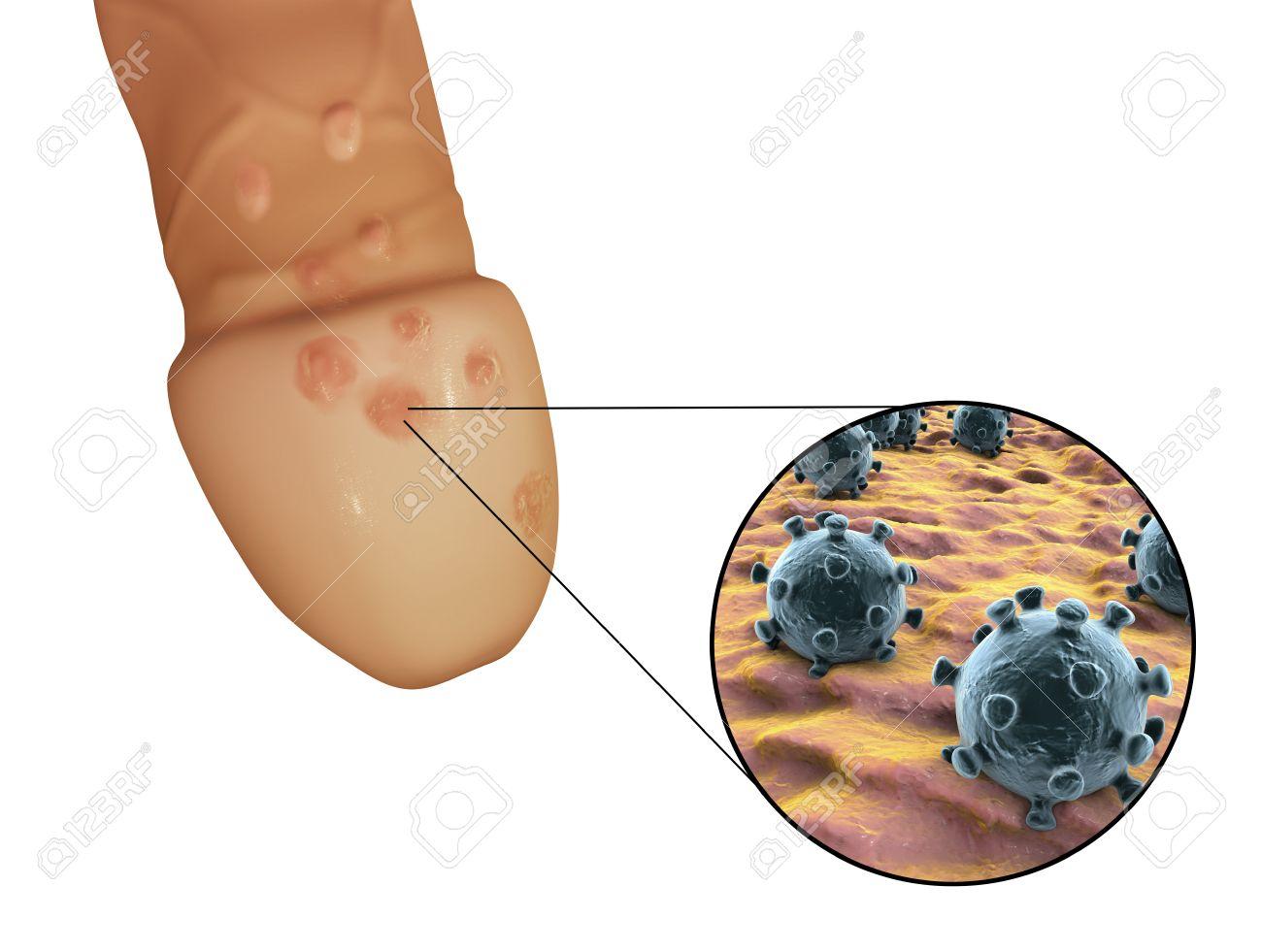 Lésions d'herpès génital et la vue rapprochée de l'herpès simplex virus  attachés à des cellules humaines, illustration 3D