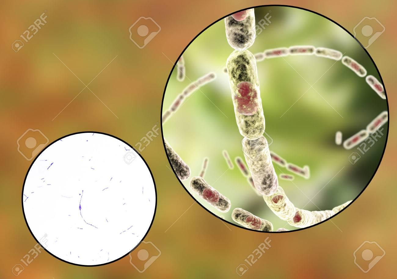 Resultado de imagen para Una micrografía de la bacteria del ántrax.