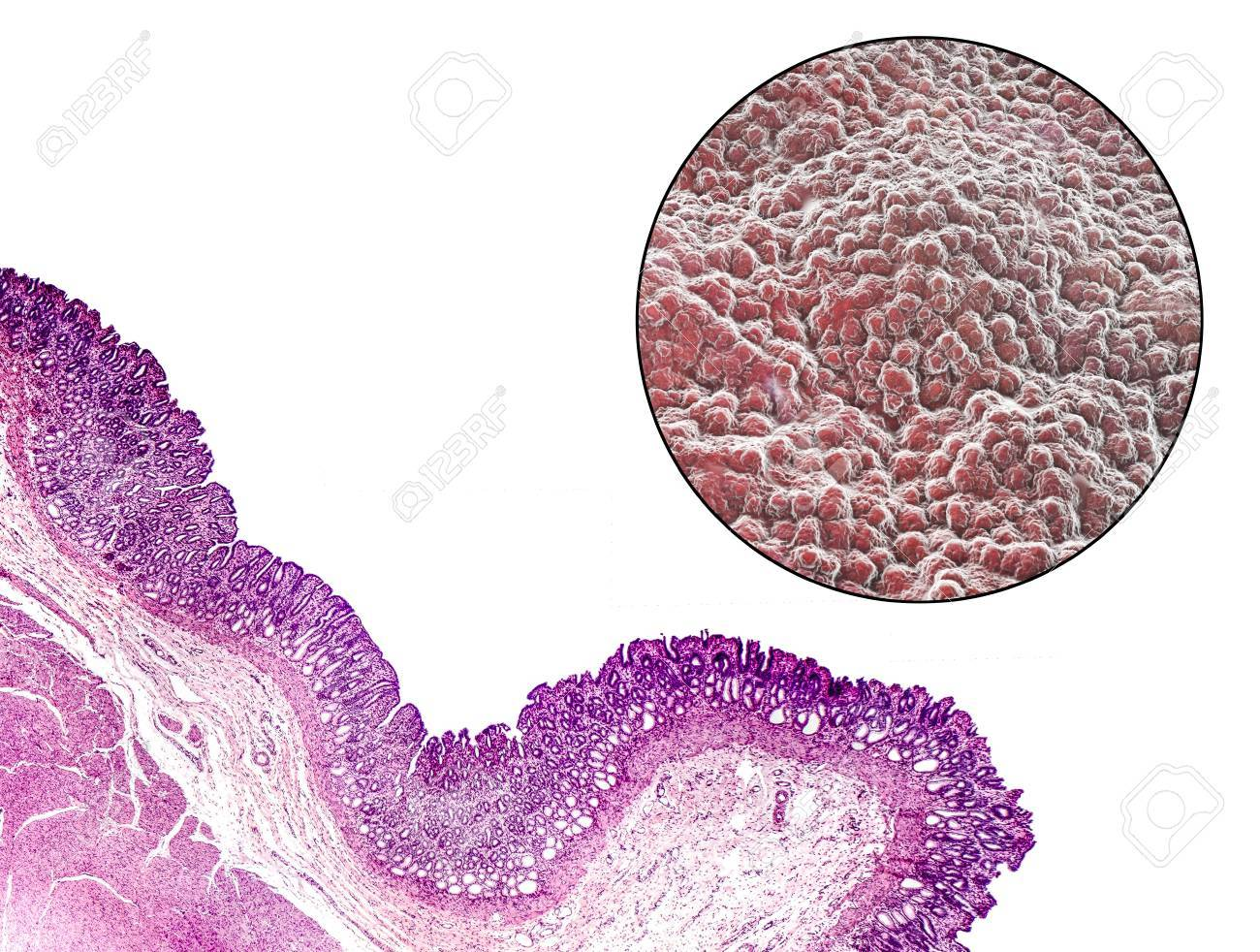 Pyloric Mucosa Light Micrograph And 3d Illustration Which Show