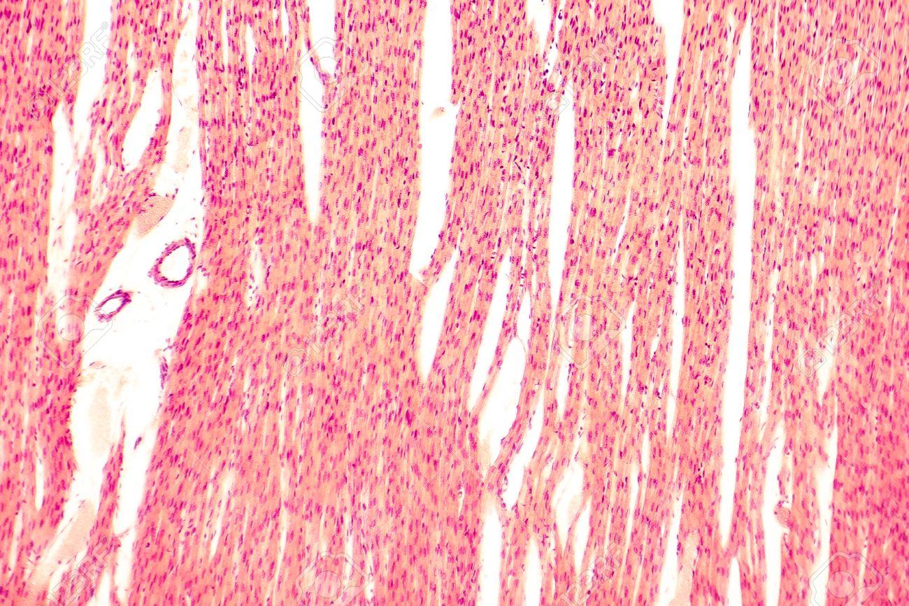 Cardiac Muscle Tissue Striations 44788 Loadtve