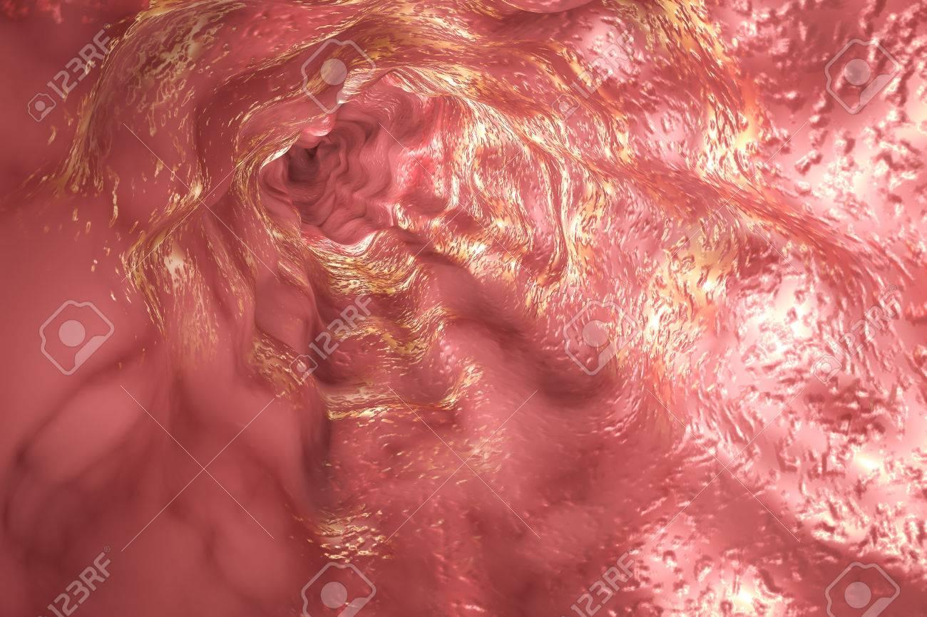 Mucosa Del Esófago Y Del Esfínter Esofágico, Ilustración 3D Fotos ...