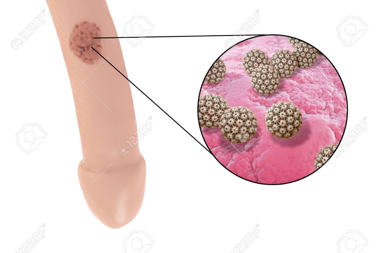 Hpv virus in italiano, Lesione per papilloma virus