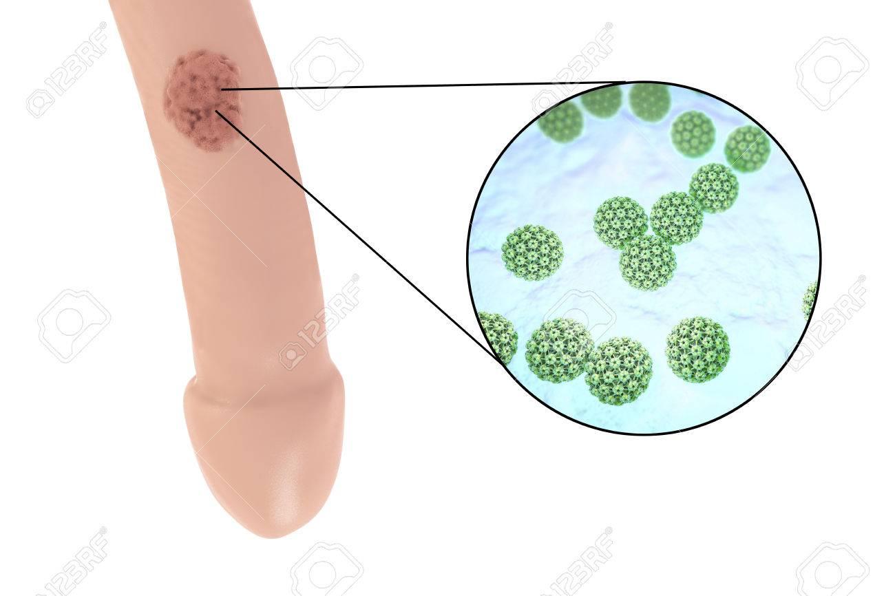 hpv virus in men