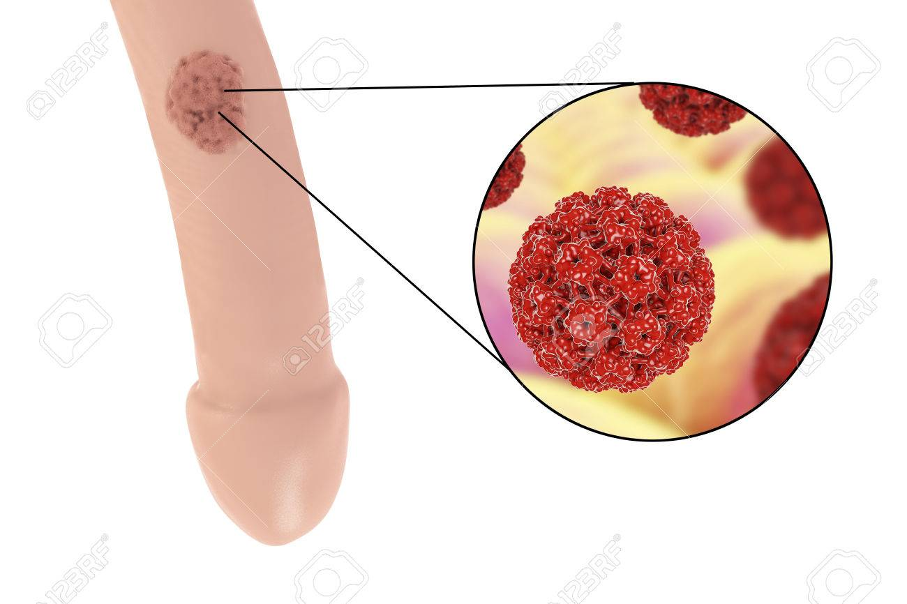 hpv causes lesions