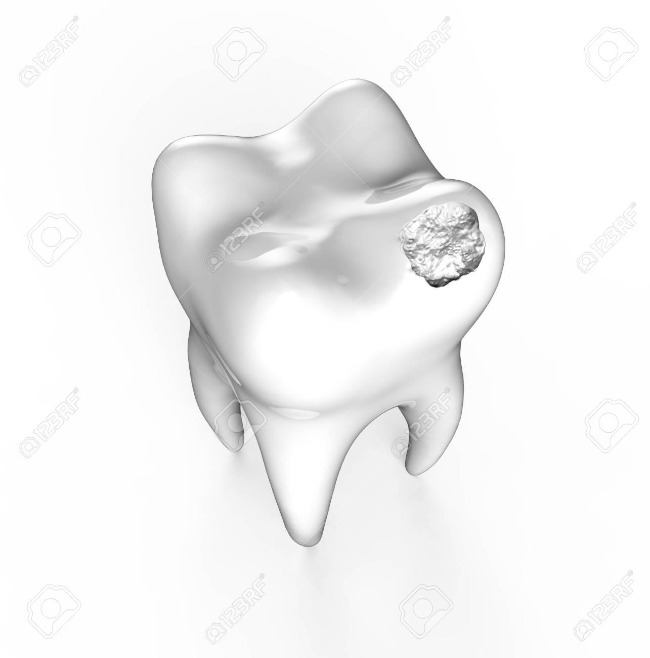 Menschlicher Zahn Mit Schwarzem Loch. Karies, Zahnkaries Isoliert ...