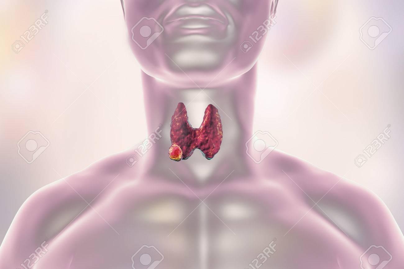 Cáncer De Tiroides. Ilustración 3D Que Muestra La Glándula Tiroides ...