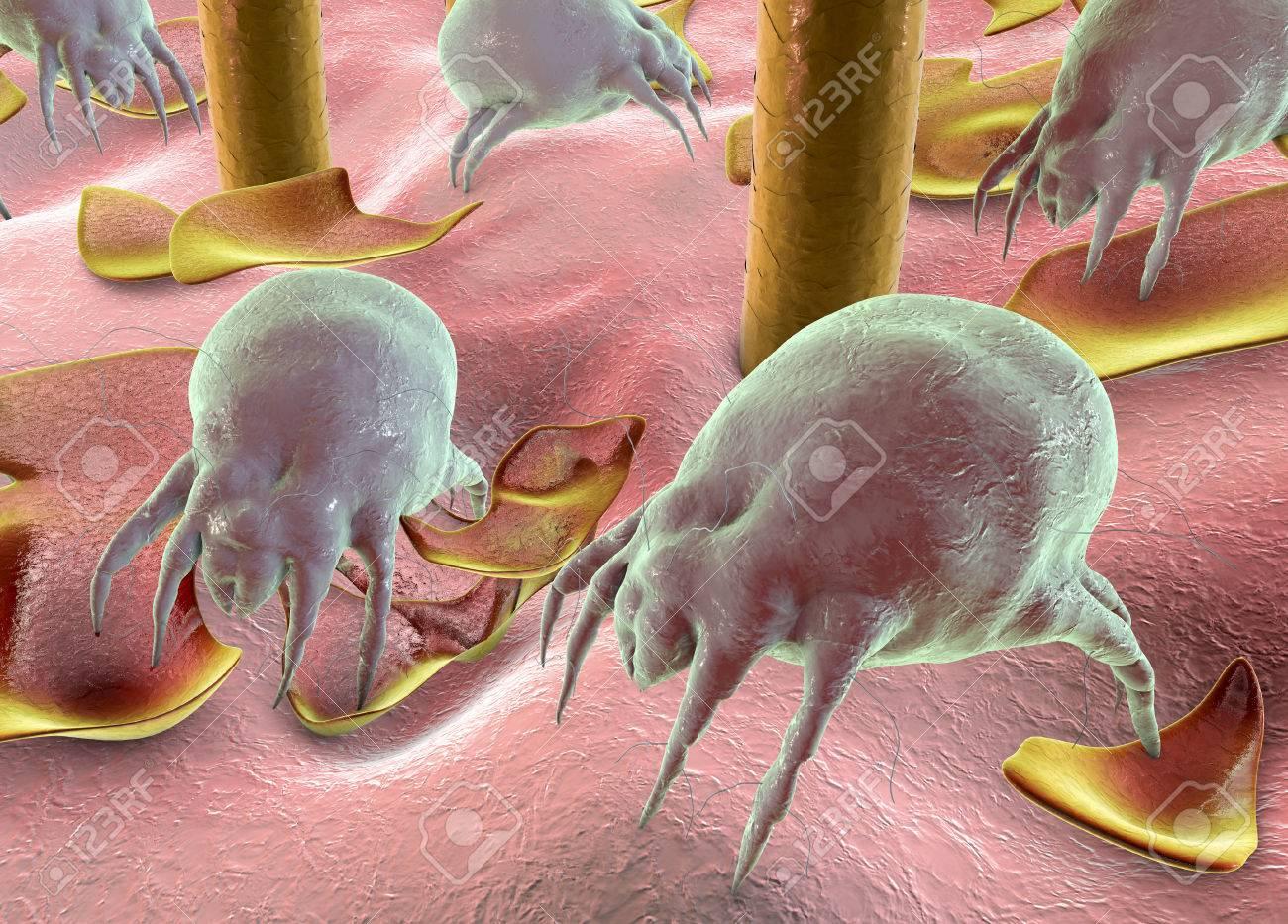 Acariens Dermatophagoides Sur L Homme Parasites Vivant Dans La