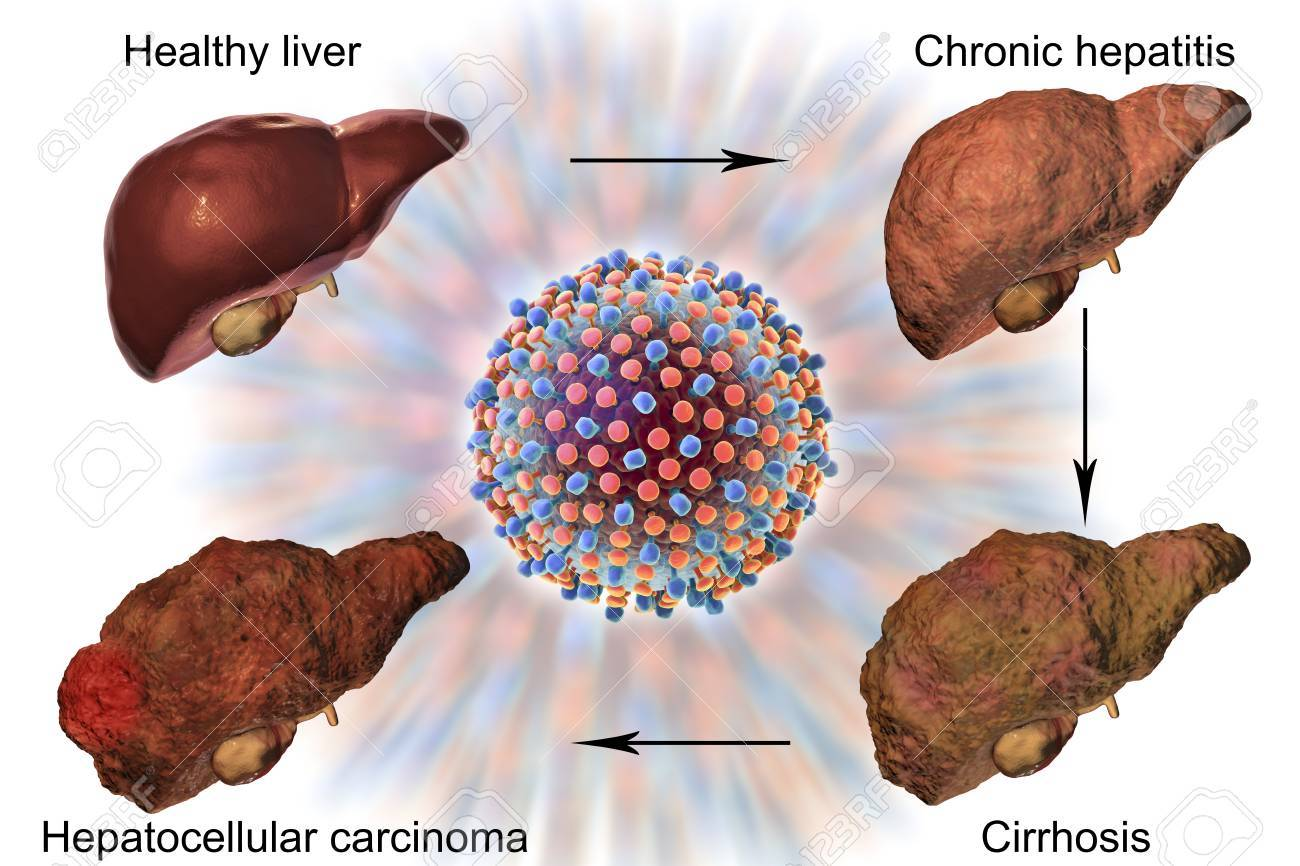 132 Alcoholic Hepatitis Stock Illustrations, Cliparts And