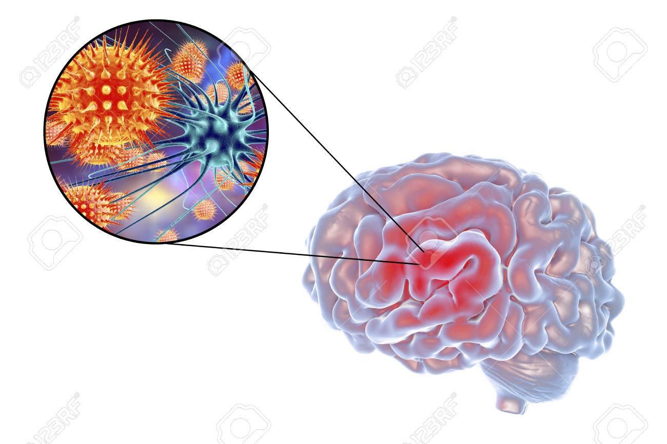 Viral Encephalitis, 3D Illustration Showing Brain And Close-up ...
