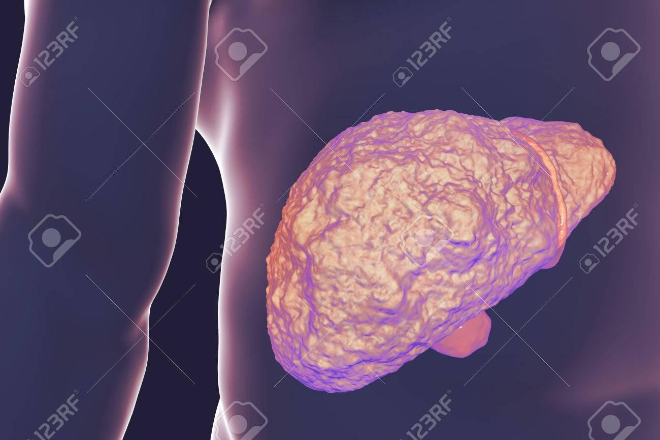 Hígado Con Cirrosis Dentro Del Cuerpo Humano. Ilustración 3D Fotos ...