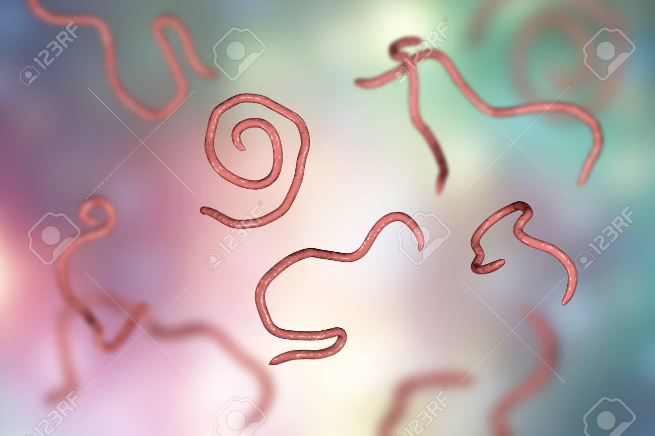 Enterobiasis. Bu hastalık nedir