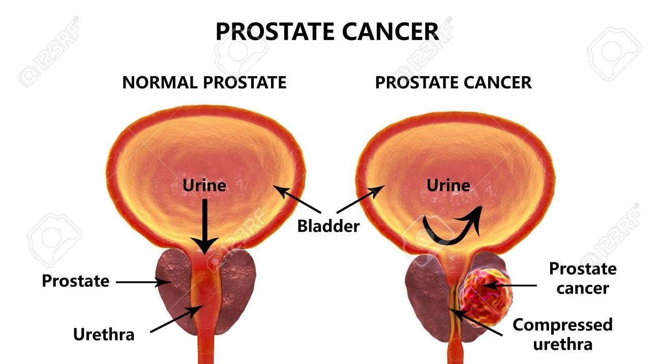 Prostate cancer 3d illustration showing normal prostate gland prostate cancer 3d illustration showing normal prostate gland and presence of tumor inside prostate gland ccuart Gallery