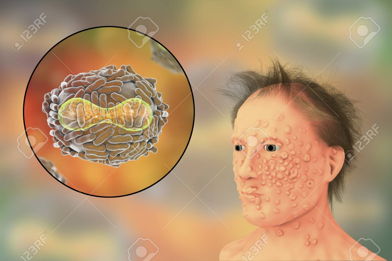 天然痘感染症や天然痘ウイルス、...