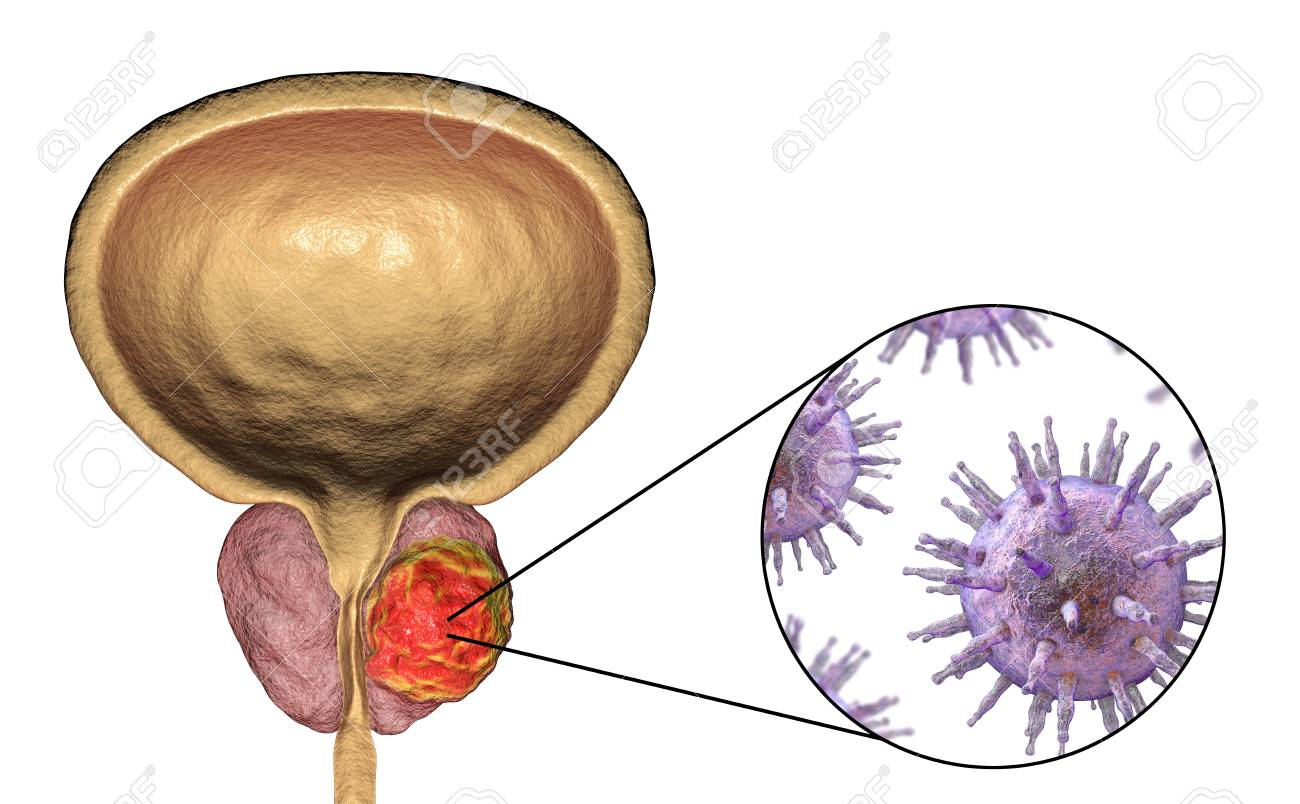 imagenes de cancer a la prostata