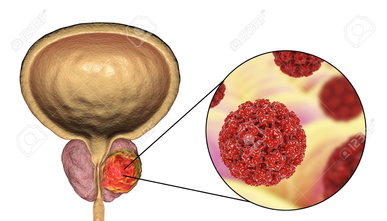 glándulas cancerosas en la próstata