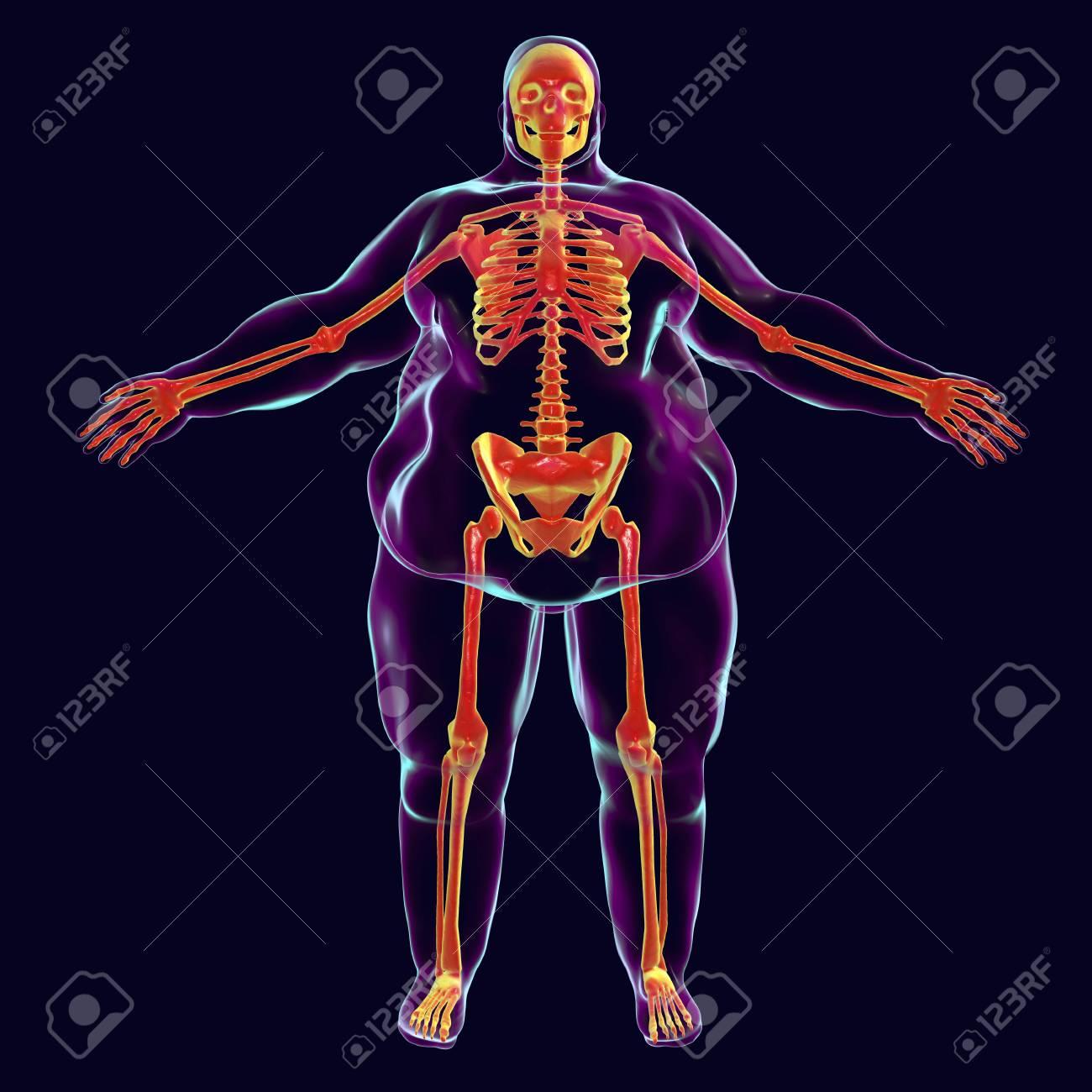 Korpulenzproblem-Begriffsbild, Illustration 3D, Die Normales Skelett ...