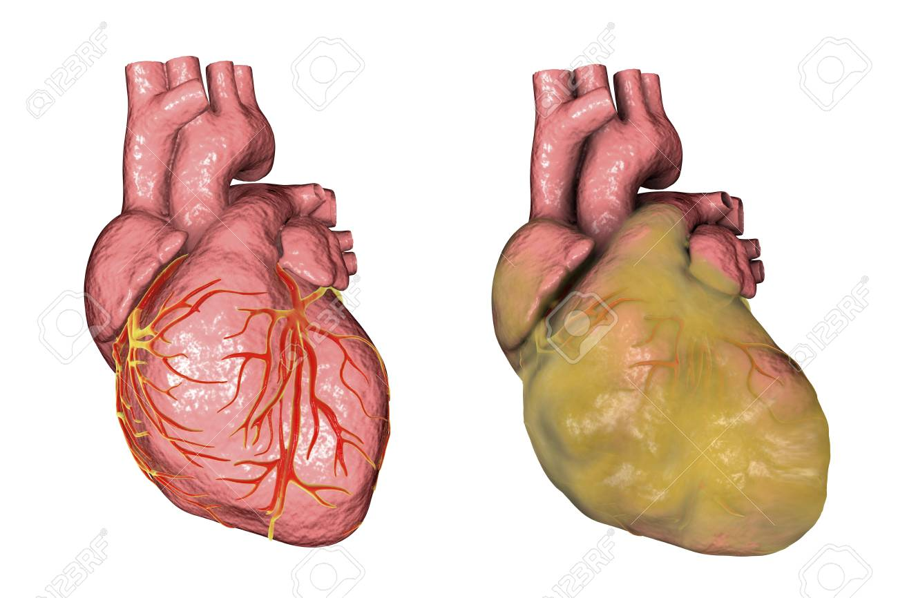 Healthy And Obese Heart With Left Ventricular Hypertrophy Isolated
