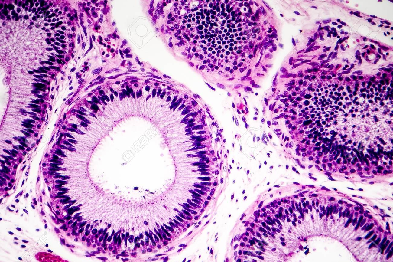 histology of human epididymis tissue micrograph photo under