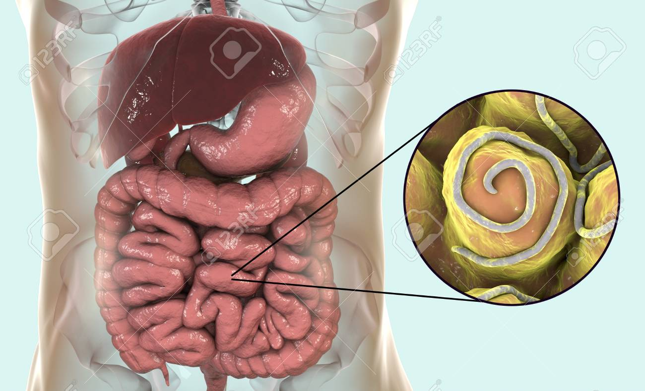 nematode enterobiasis