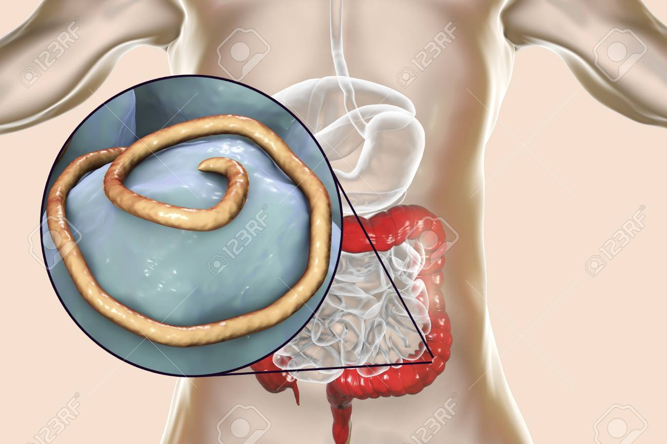 Helminths Nematodes Enterobius In The Gut. Threadworm Which Causes ...