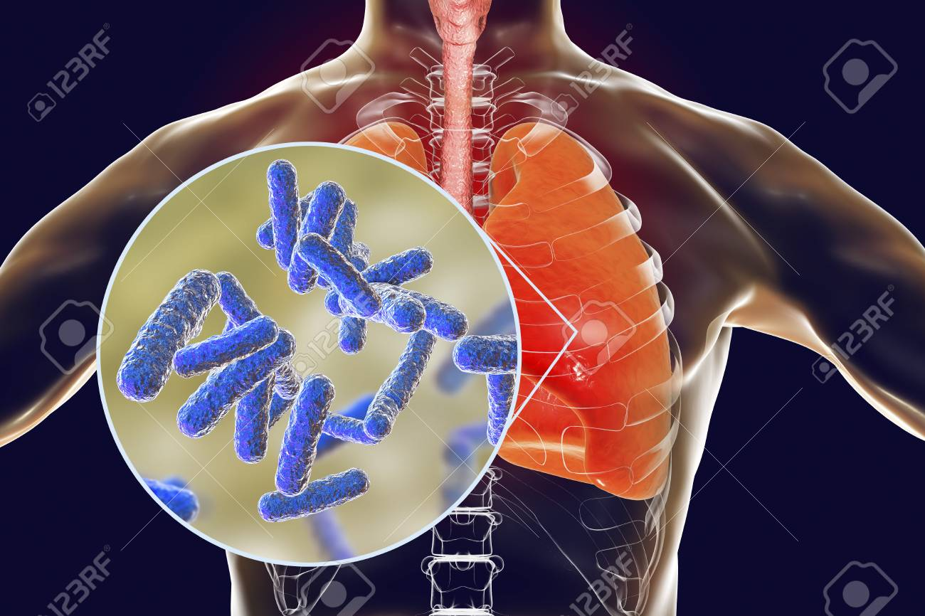 Bacteria pneumonia medical concept 3d illustration showing stock bacteria pneumonia medical concept 3d illustration showing human lungs and close up view ccuart Image collections