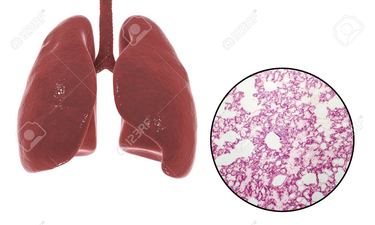Human Lungs Anatomy And Histology, 3D Illustration And Light.. Stock ...