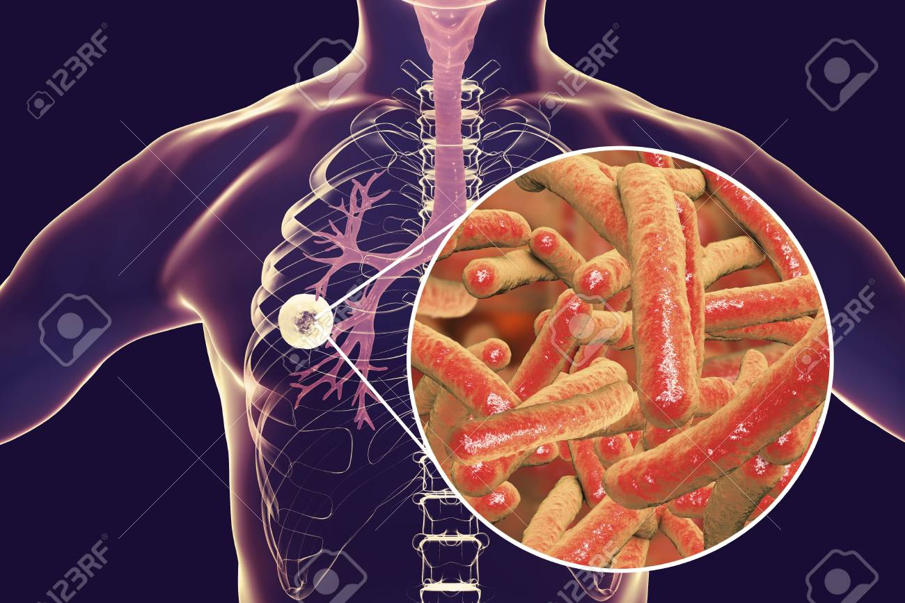 Fibrous Cavernous Pulmonary Tuberculosis And Close Up View Of