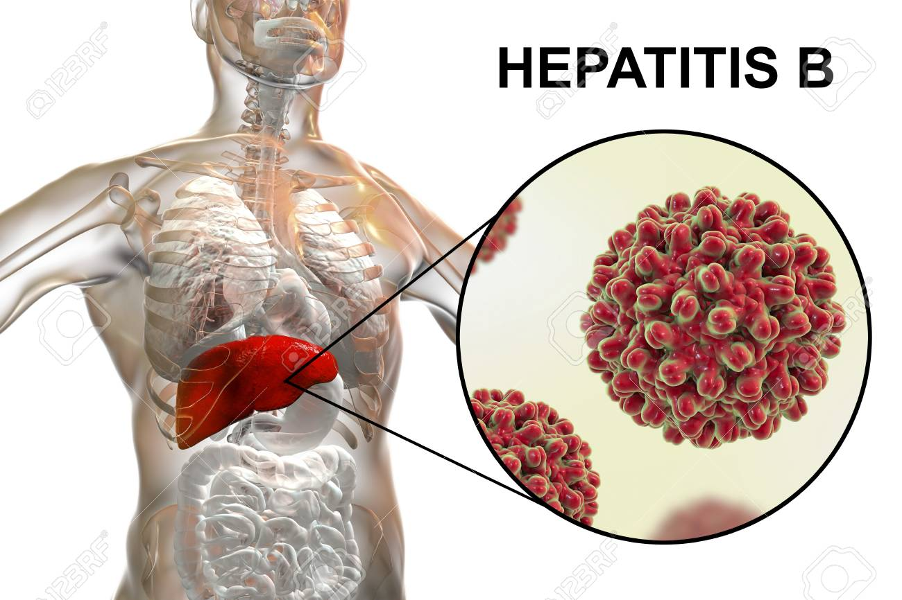 Liver With Hepatitis B Infection Highlighted Inside Human Body ...