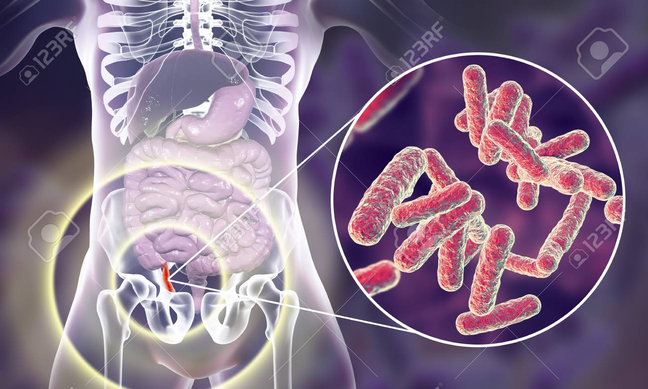 Acute Appendicitis And Close Up View Of Bacteria In Appendix