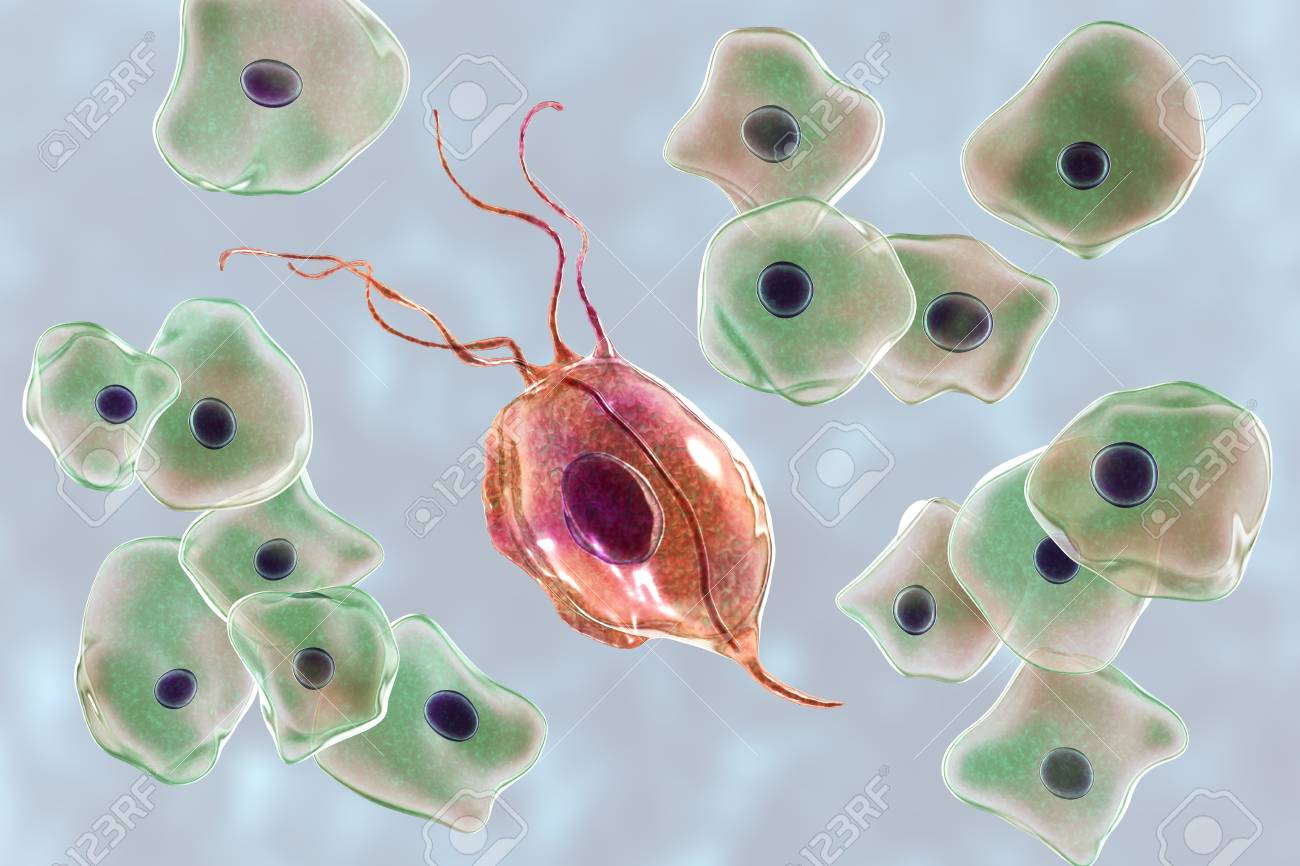 Trichomonas tenax)