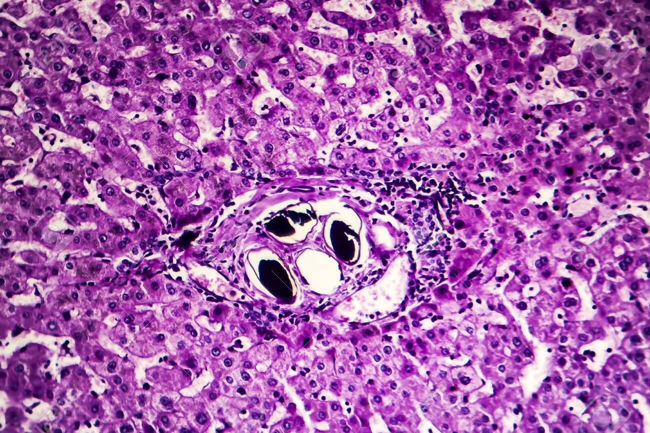schistosomiasis liver histology tratament paraziți cu bandă