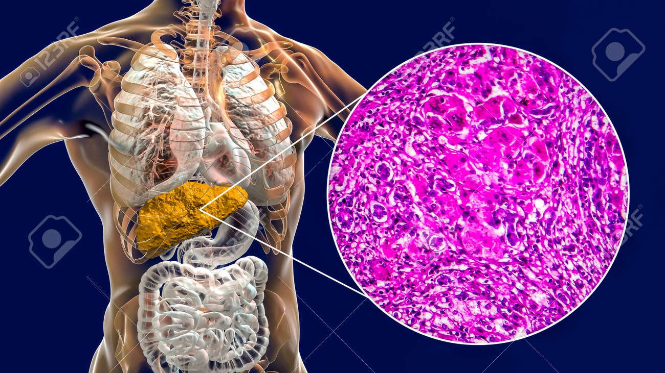 Liver with cirrhosis inside human body. 3D illustration and light micrograph of portal cirrhosis - 157016653