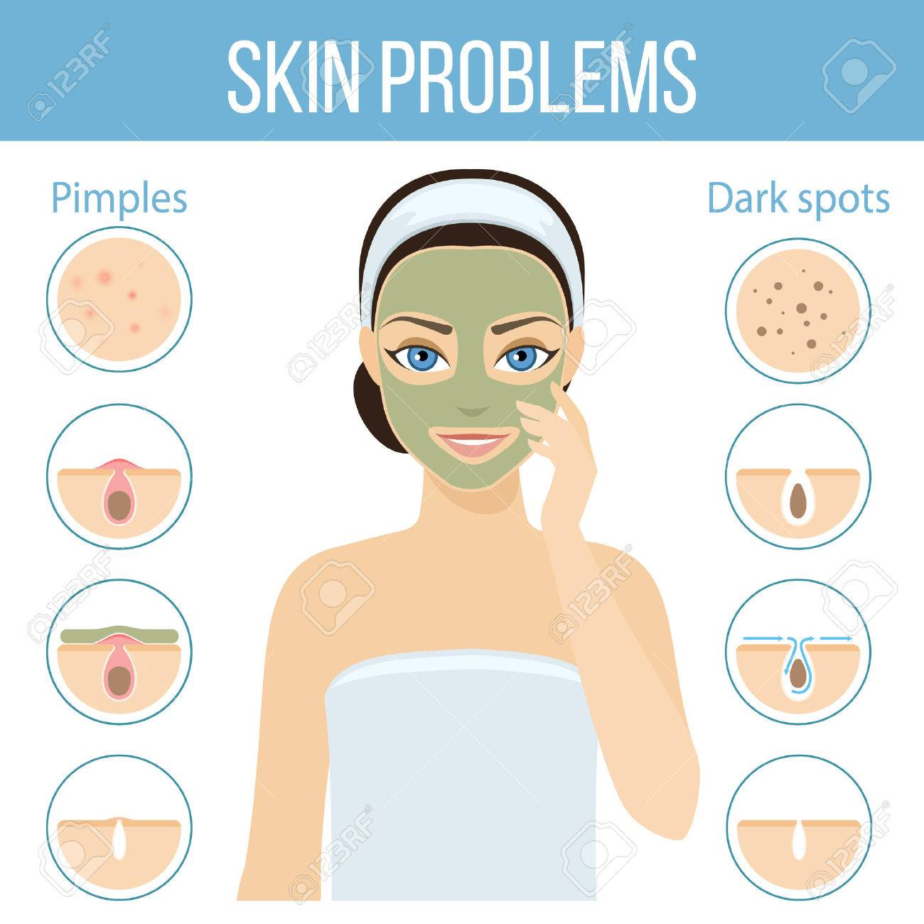 Girl applies cosmetic mask on her face. Skin problems solution, home remedies. - 60173185