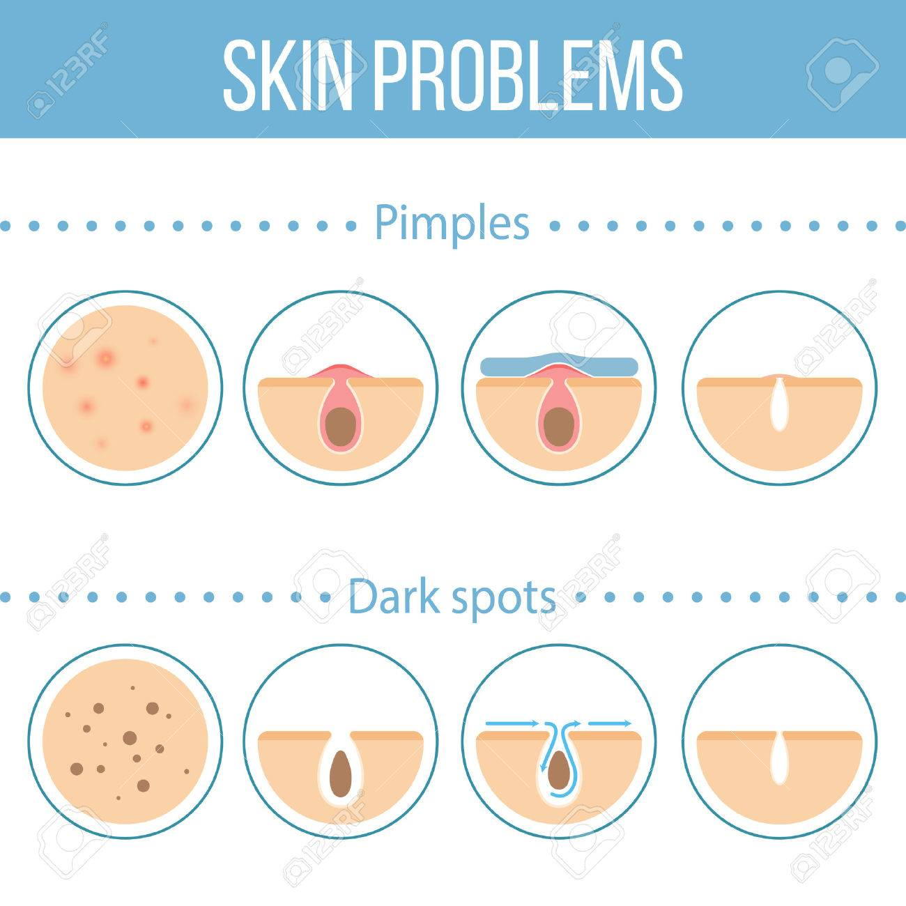 Skin problems icons set. - 60173280