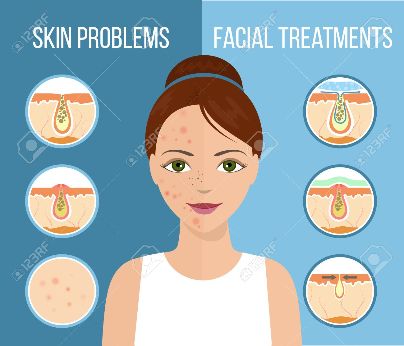 Girl with skin problems on her face such as acne pimples and girl with skin problems on her face such as acne pimples and clogged pores pooptronica