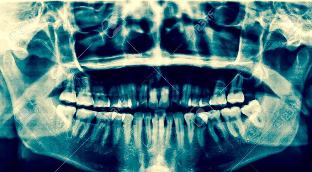 Radiografía Dental. Una Radiografía Panorámica De La Boca, Con Las ...