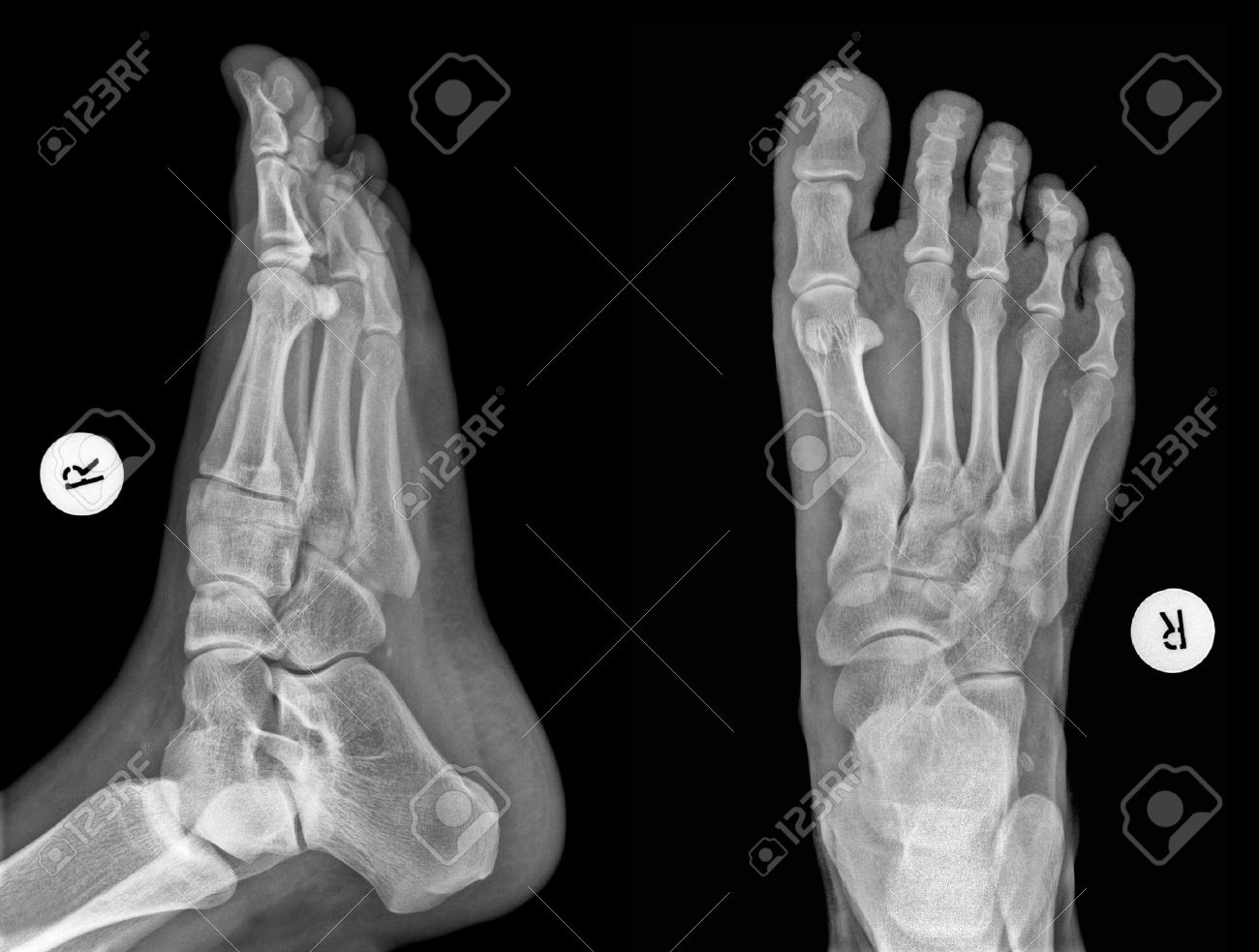 detail of an x-ray of a foot stock photo, picture and royalty free, Skeleton